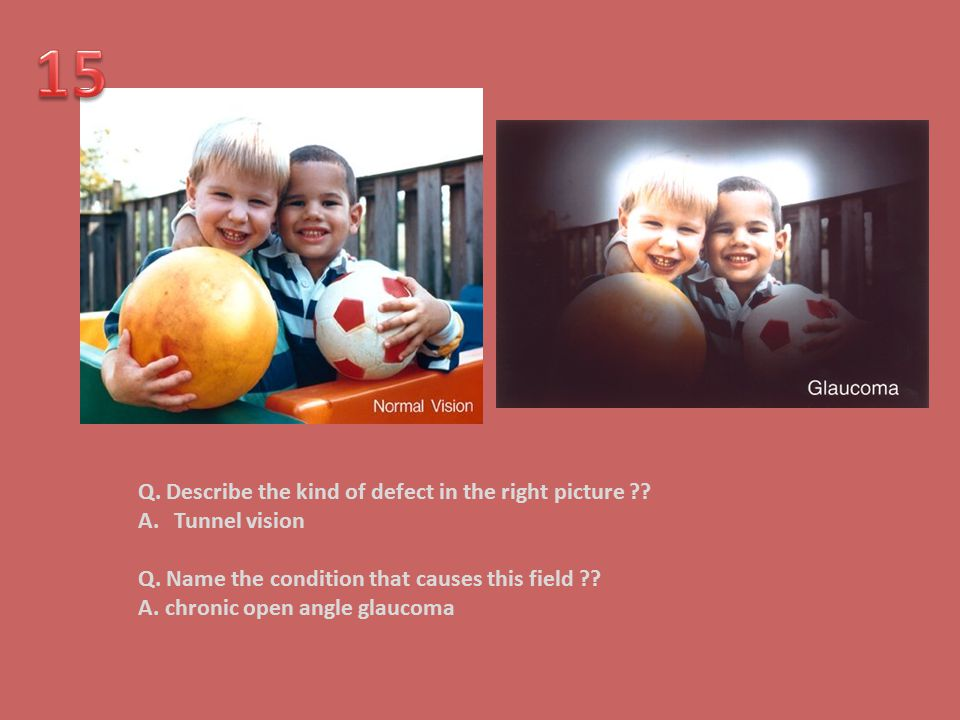 15 Q. Describe the kind of defect in the right picture