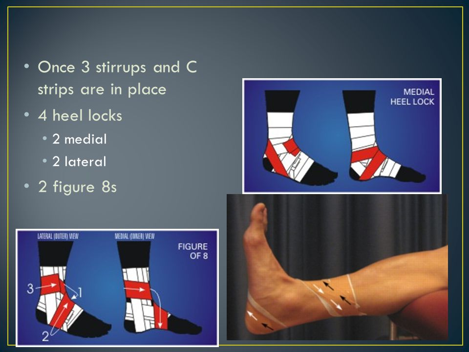 Once 3 stirrups and C strips are in place 4 heel locks