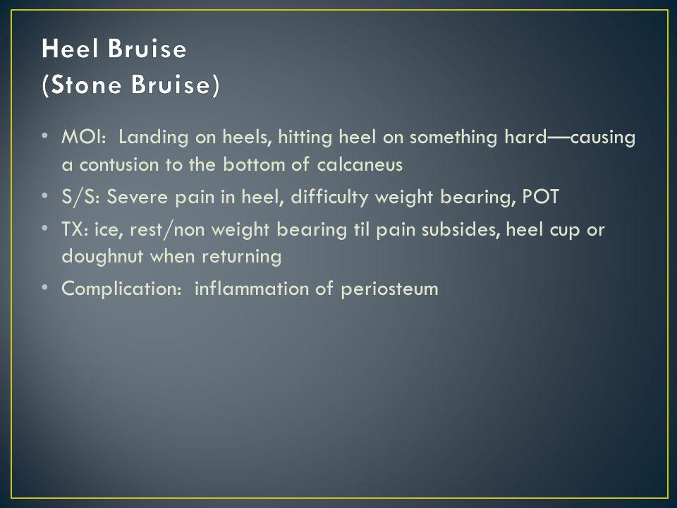Heel Bruise (Stone Bruise)