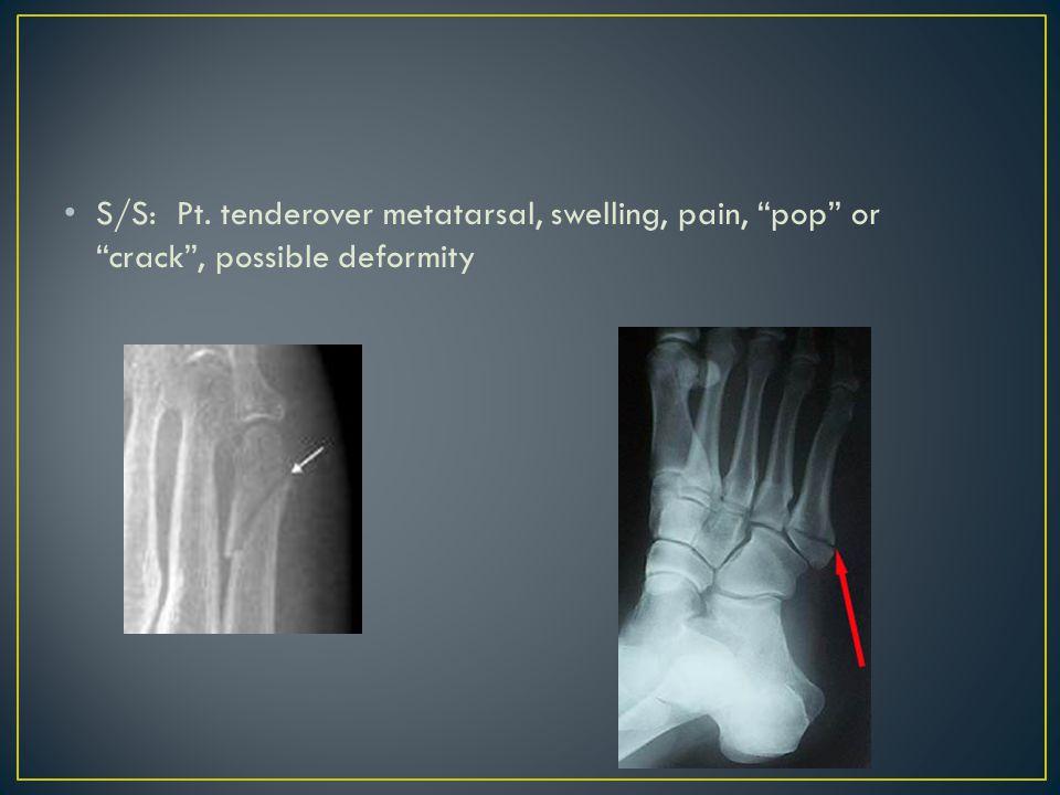 S/S: Pt. tenderover metatarsal, swelling, pain, pop or crack , possible deformity