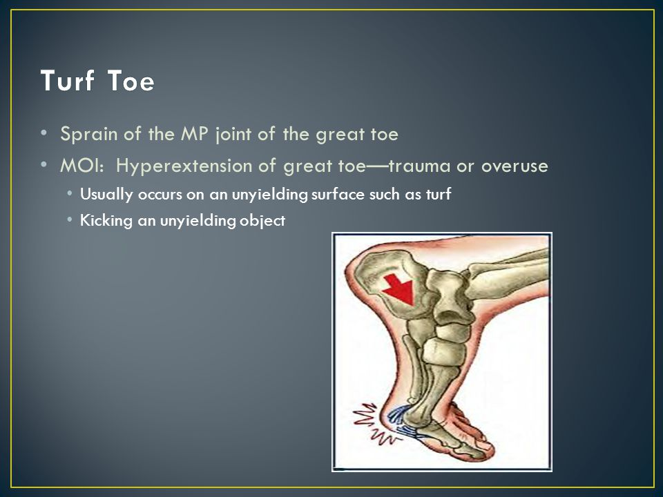 Turf Toe Sprain of the MP joint of the great toe