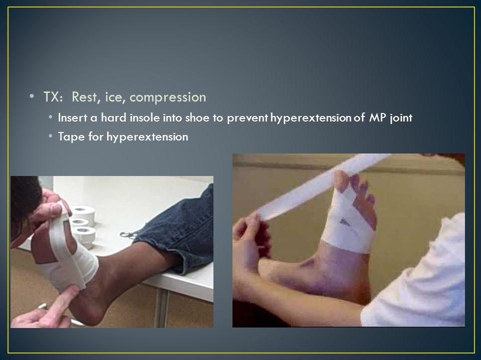 TX: Rest, ice, compression