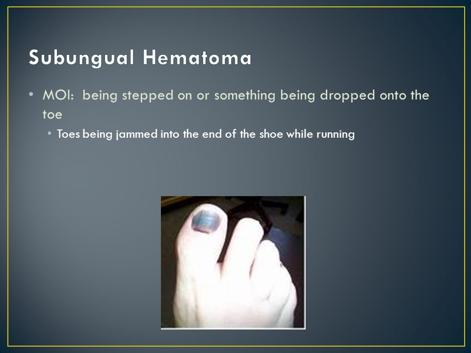 Subungual Hematoma MOI: being stepped on or something being dropped onto the toe.