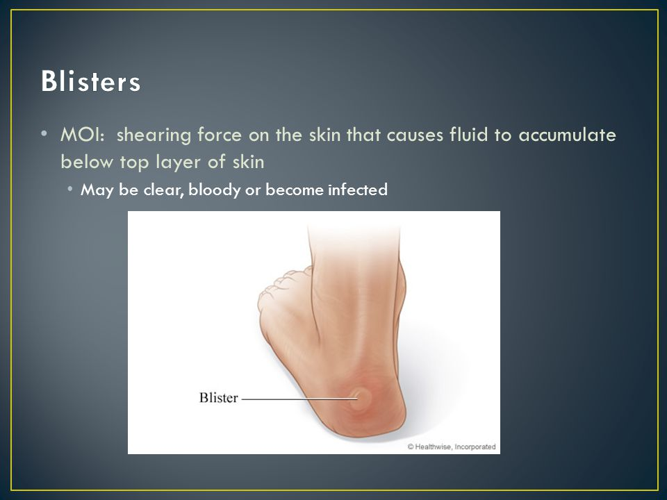 Blisters MOI: shearing force on the skin that causes fluid to accumulate below top layer of skin.