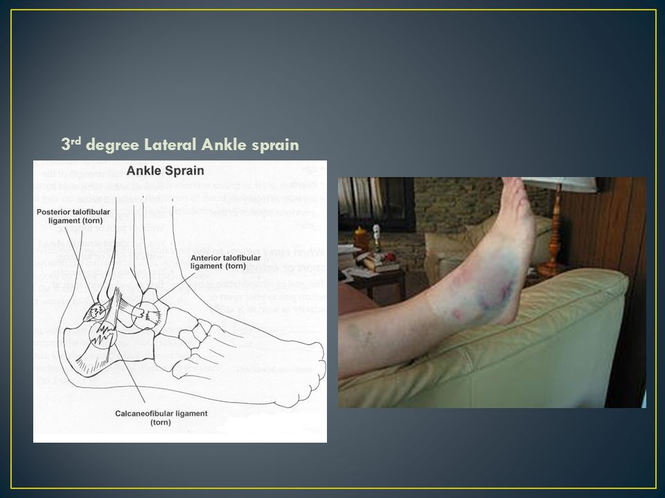 3rd degree Lateral Ankle sprain