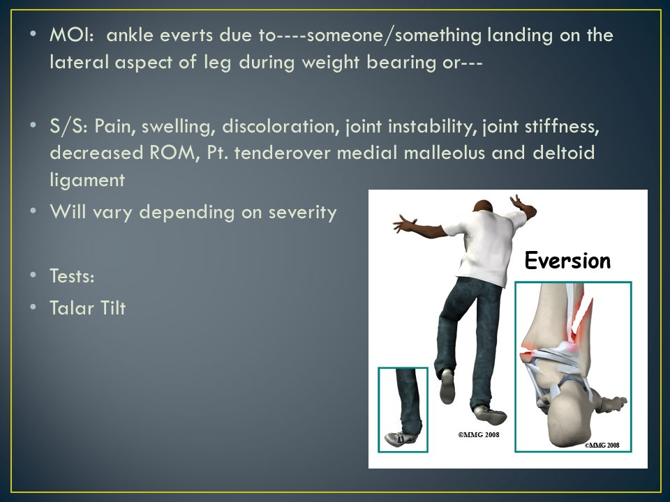 MOI: ankle everts due to----someone/something landing on the lateral aspect of leg during weight bearing or---