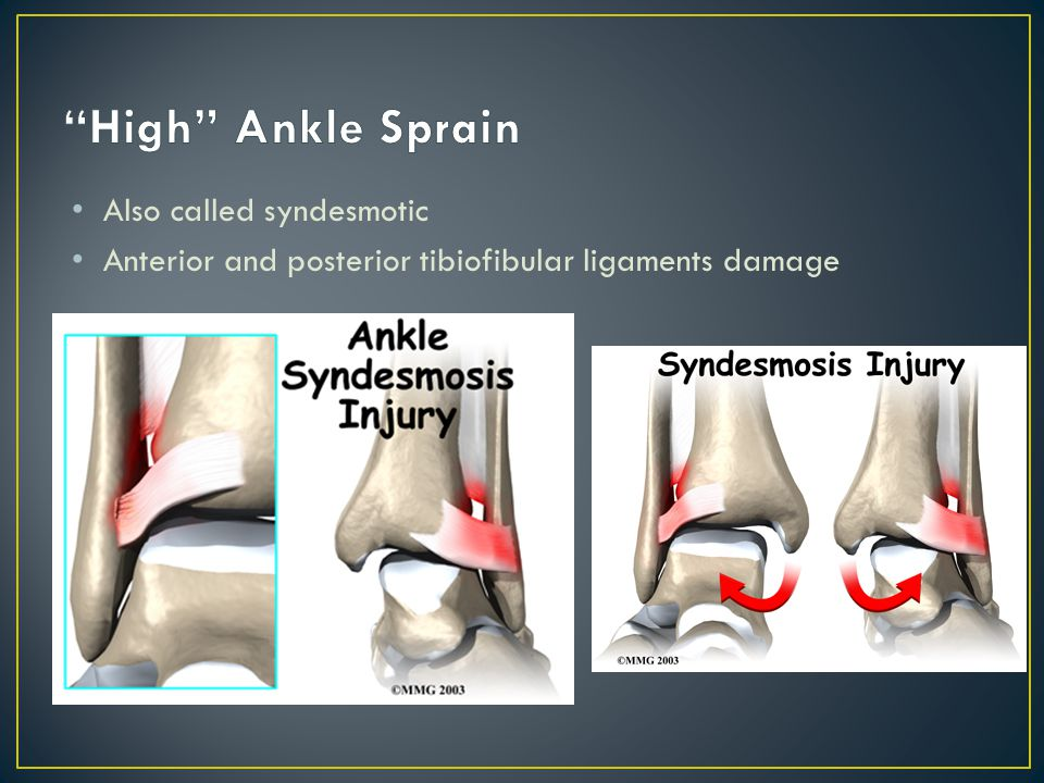 High Ankle Sprain Also called syndesmotic