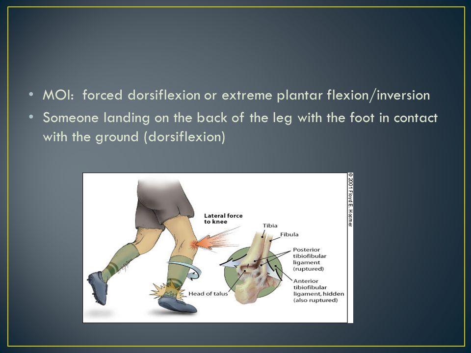 MOI: forced dorsiflexion or extreme plantar flexion/inversion