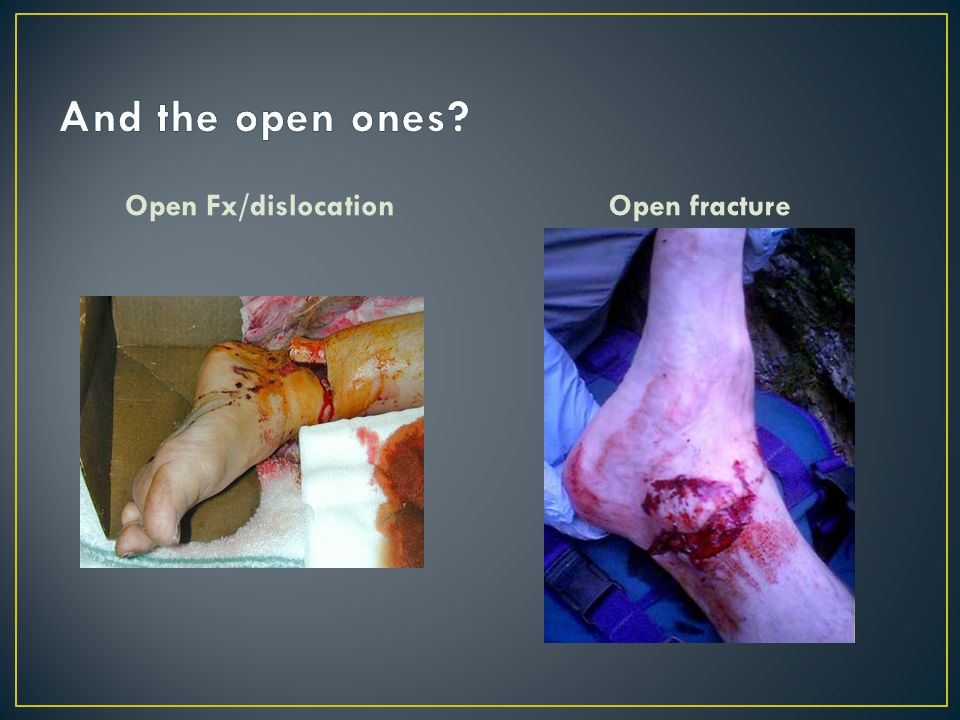 And the open ones Open Fx/dislocation Open fracture