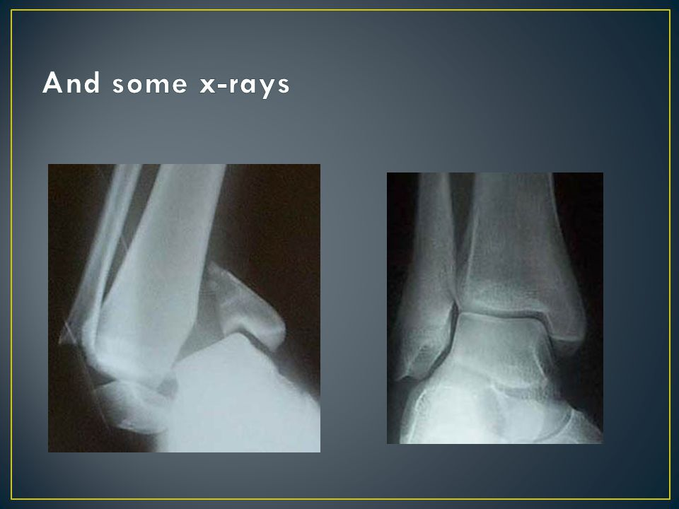 And some x-rays