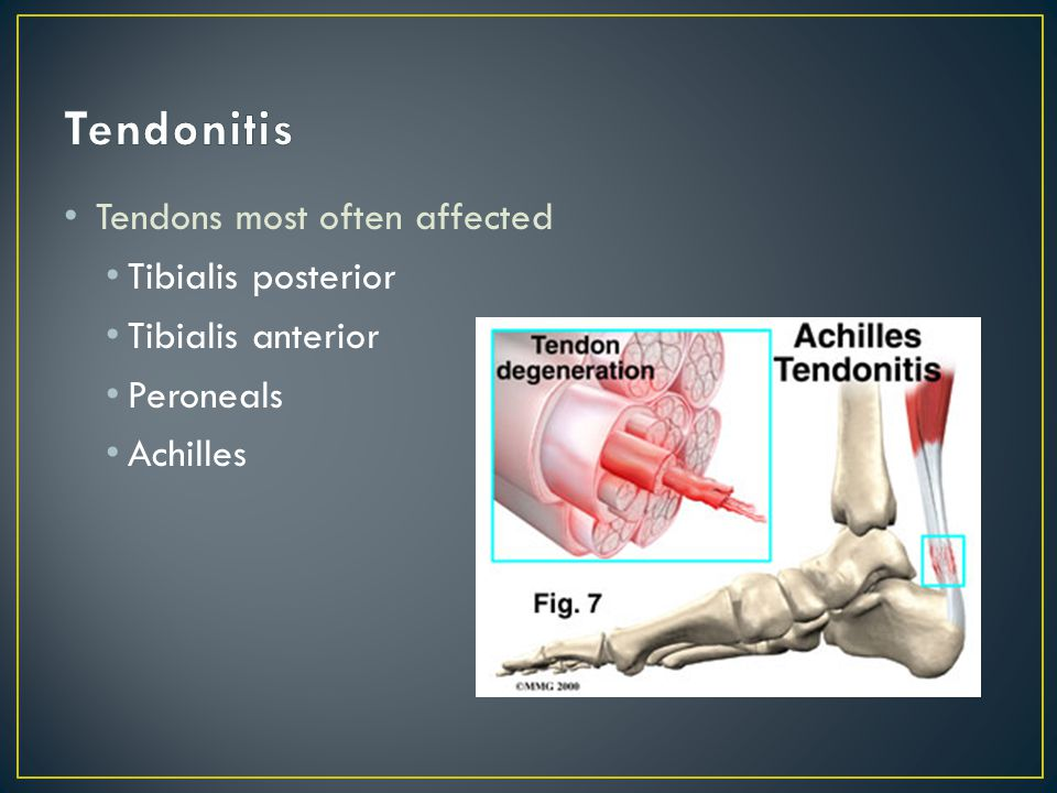 Tendonitis Tendons most often affected Tibialis posterior