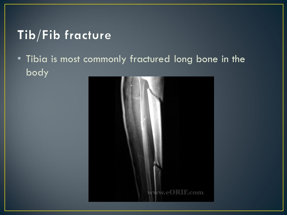 Tib/Fib fracture Tibia is most commonly fractured long bone in the body