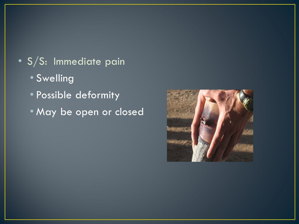 S/S: Immediate pain Swelling Possible deformity May be open or closed
