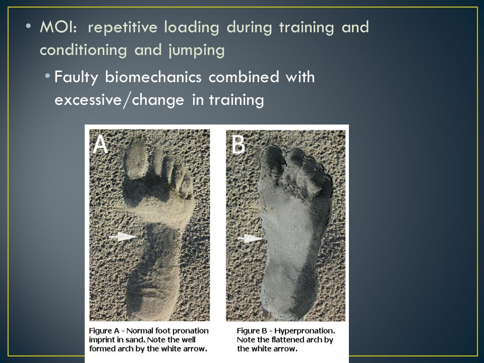 MOI: repetitive loading during training and conditioning and jumping