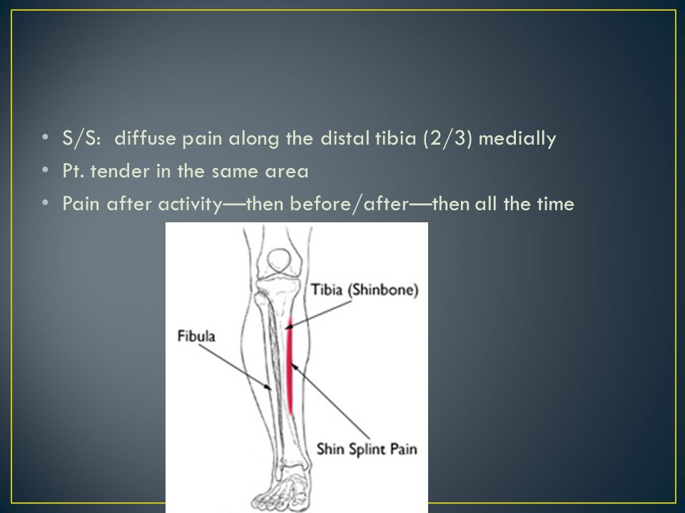 S/S: diffuse pain along the distal tibia (2/3) medially