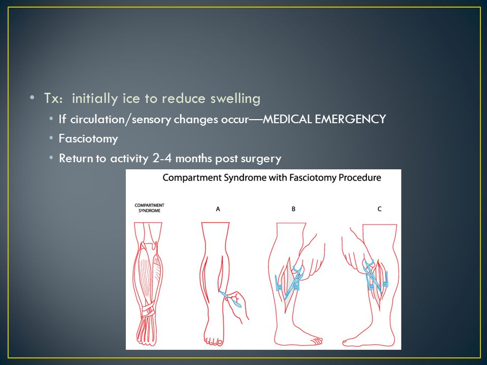 Tx: initially ice to reduce swelling