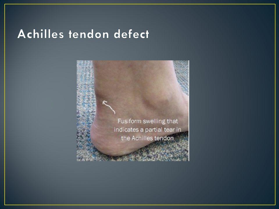 Achilles tendon defect