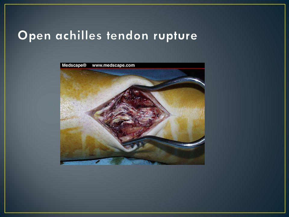 Open achilles tendon rupture