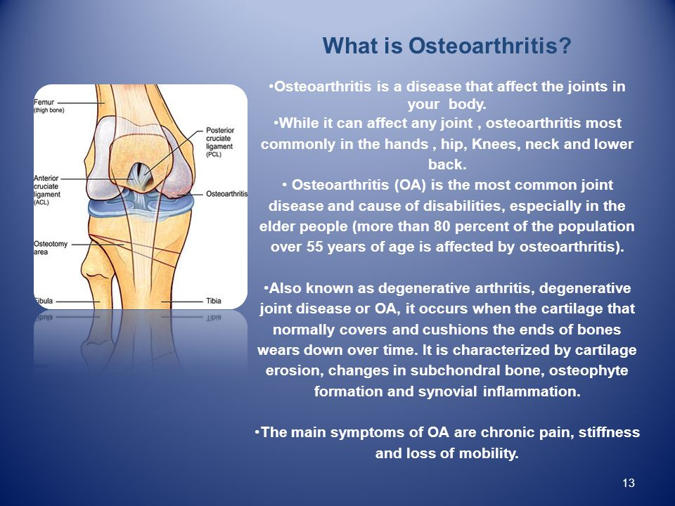 What is Osteoarthritis