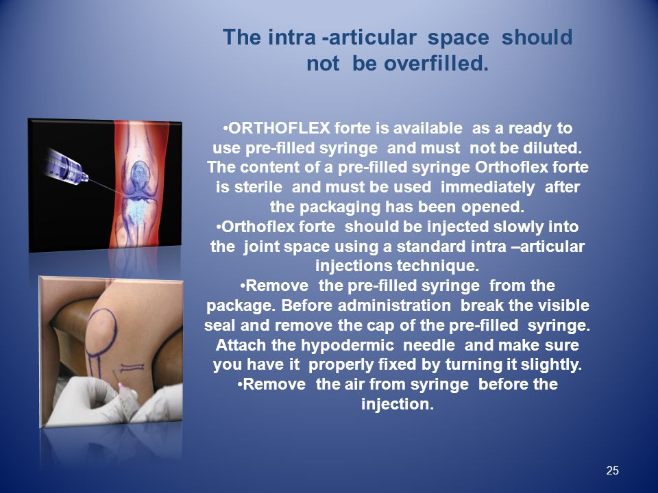 The intra -articular space should not be overfilled.