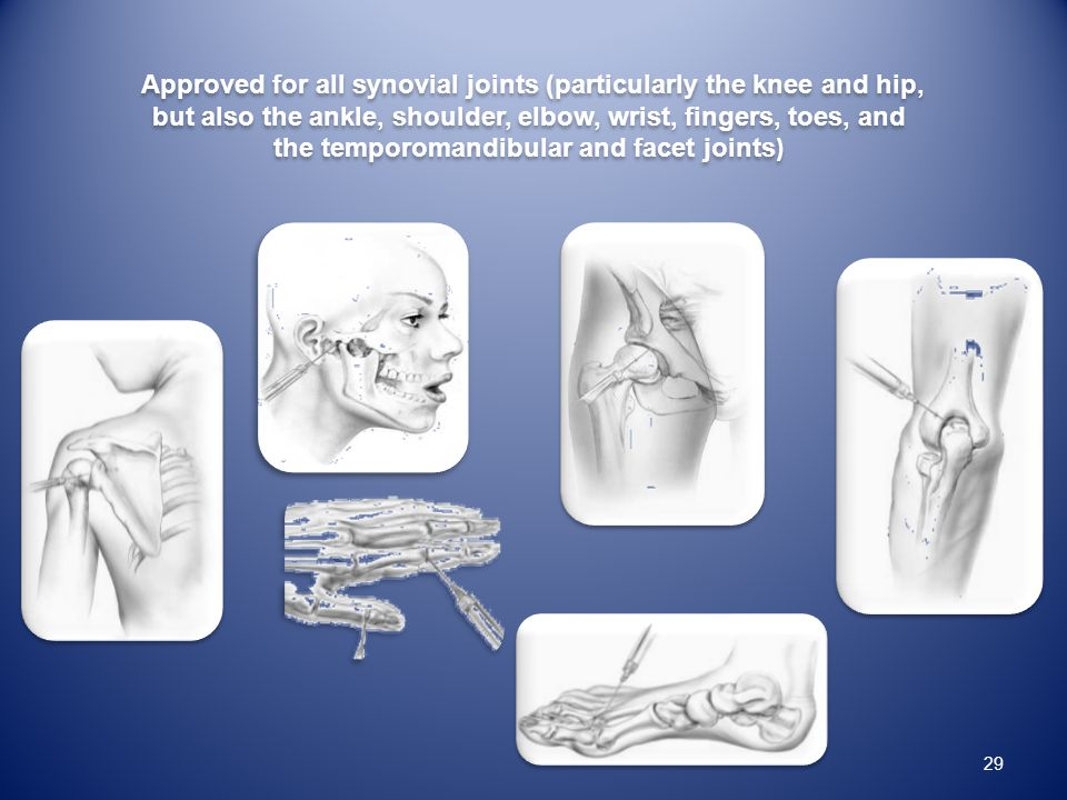 Approved for all synovial joints (particularly the knee and hip,