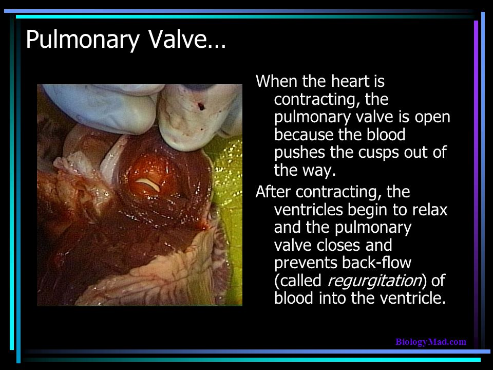 Pulmonary Valve… When the heart is contracting, the pulmonary valve is open because the blood pushes the cusps out of the way.