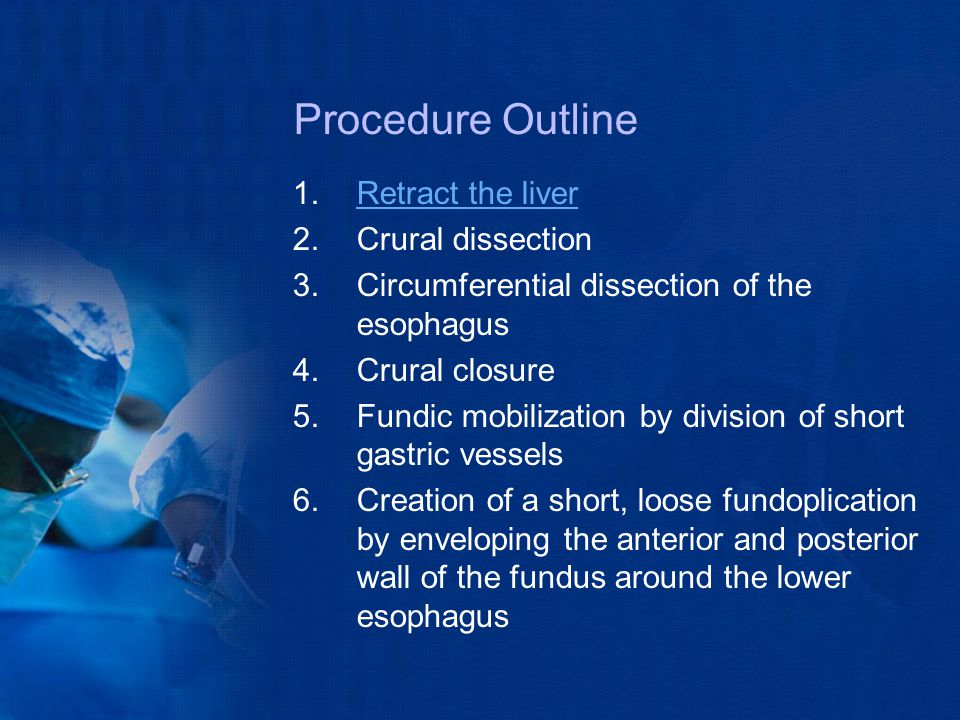 Procedure Outline Retract the liver Crural dissection