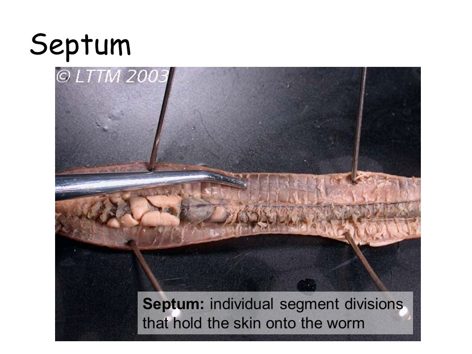 Septum Septum: individual segment divisions that hold the skin onto the worm