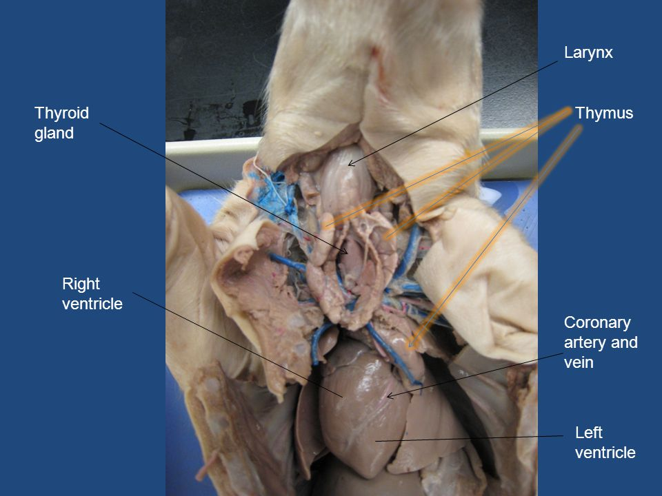 Larynx Thyroid gland Thymus Right ventricle Coronary artery and vein Left ventricle