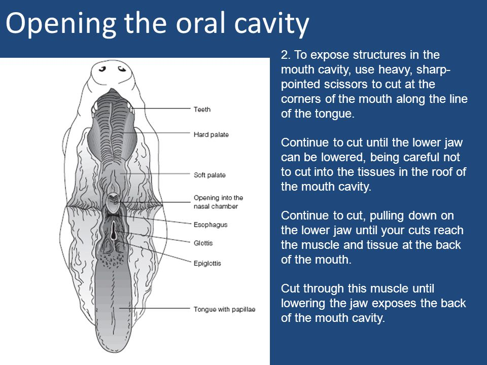 Opening the oral cavity