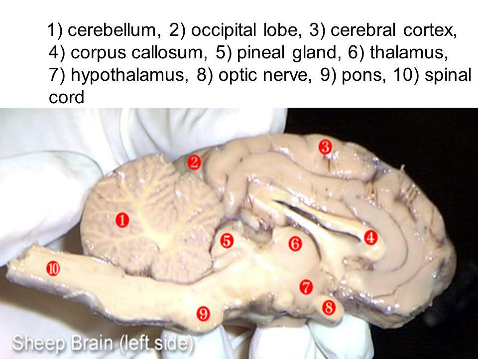 1) cerebellum, 2) occipital lobe, 3) cerebral cortex, 4) corpus callosum, 5) pineal gland, 6) thalamus, 7) hypothalamus, 8) optic nerve, 9) pons, 10) spinal cord