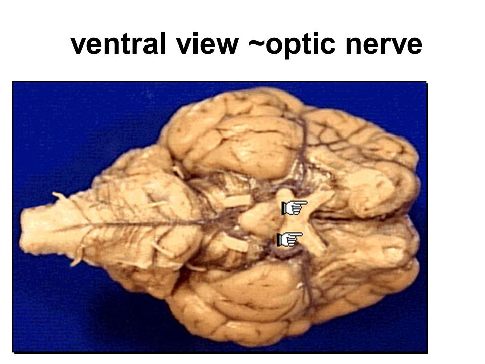 ventral view ~optic nerve