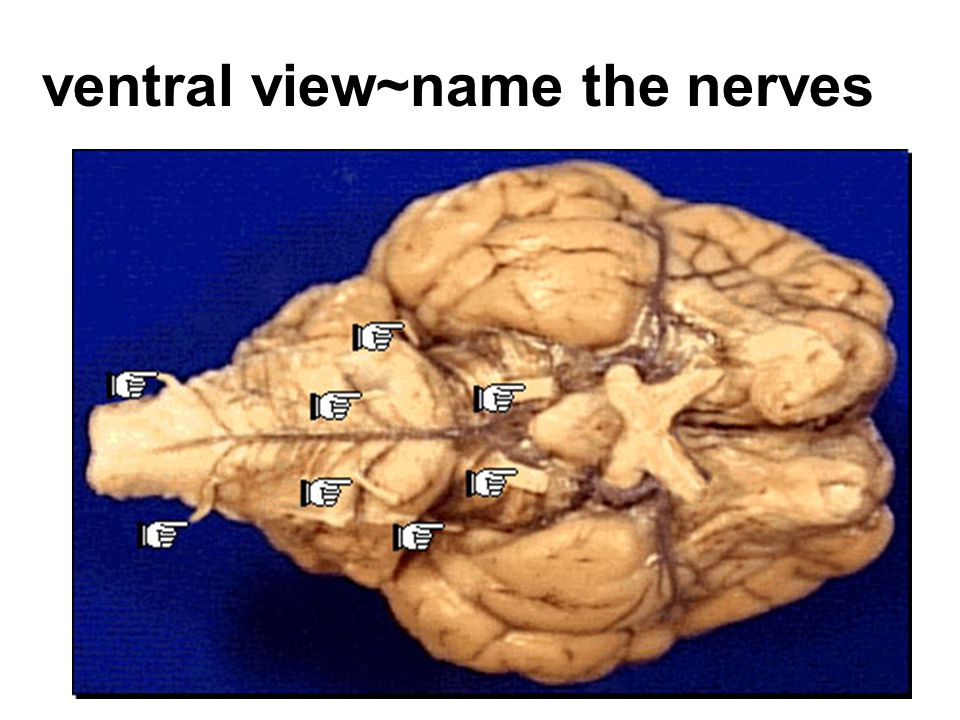 ventral view~name the nerves