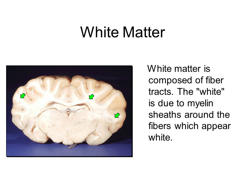 White Matter White matter is composed of fiber tracts.