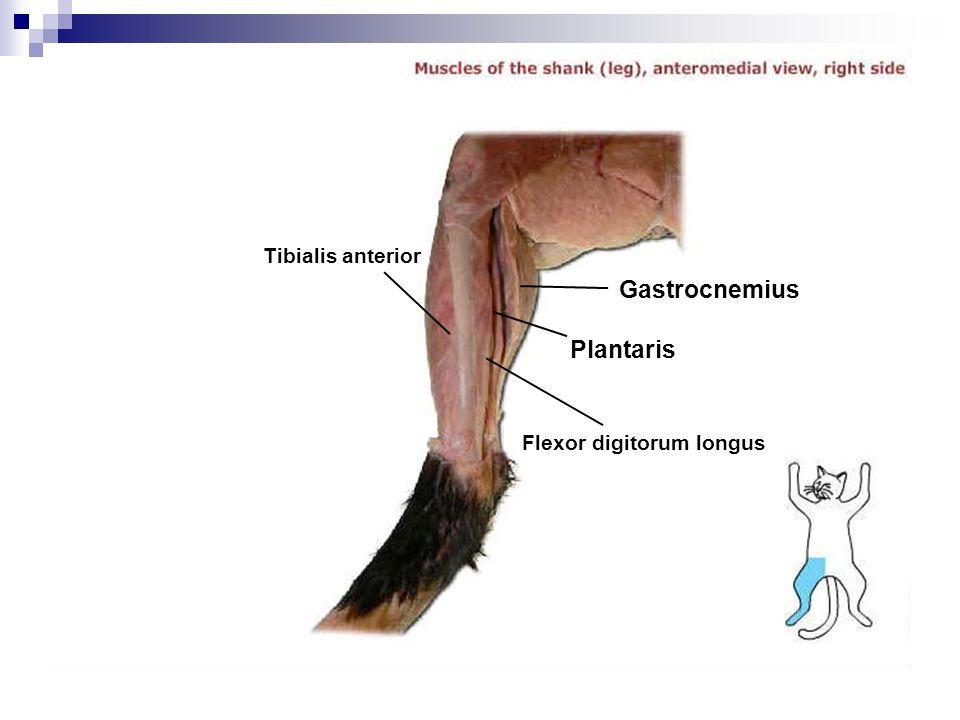 Tibialis anterior Gastrocnemius Plantaris Flexor digitorum longus
