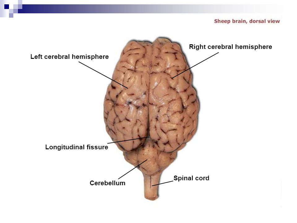 Right cerebral hemisphere