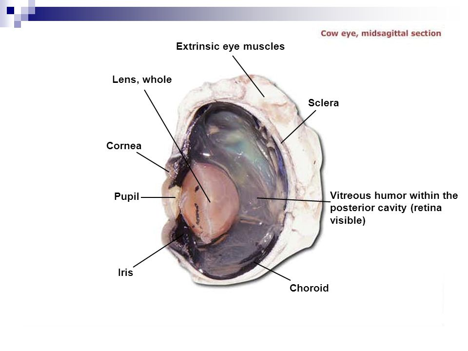 Extrinsic eye muscles Lens, whole. Sclera. Cornea. Pupil. Vitreous humor within the posterior cavity (retina visible)