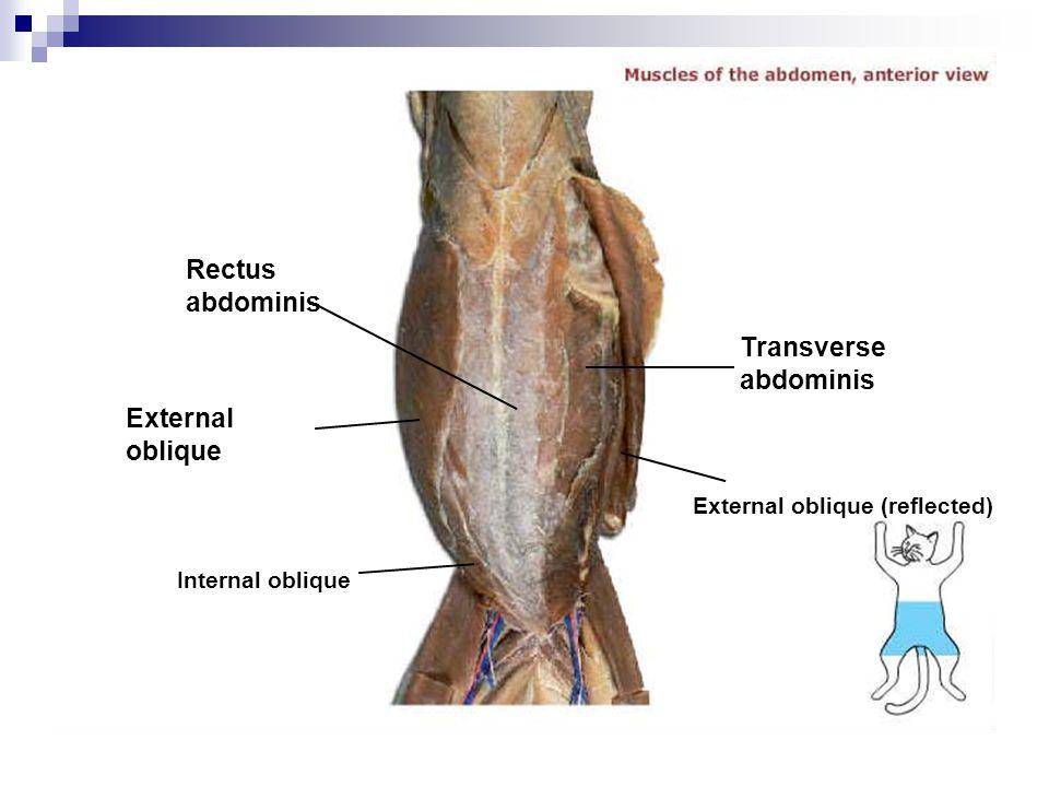 Rectus abdominis Transverse abdominis External oblique