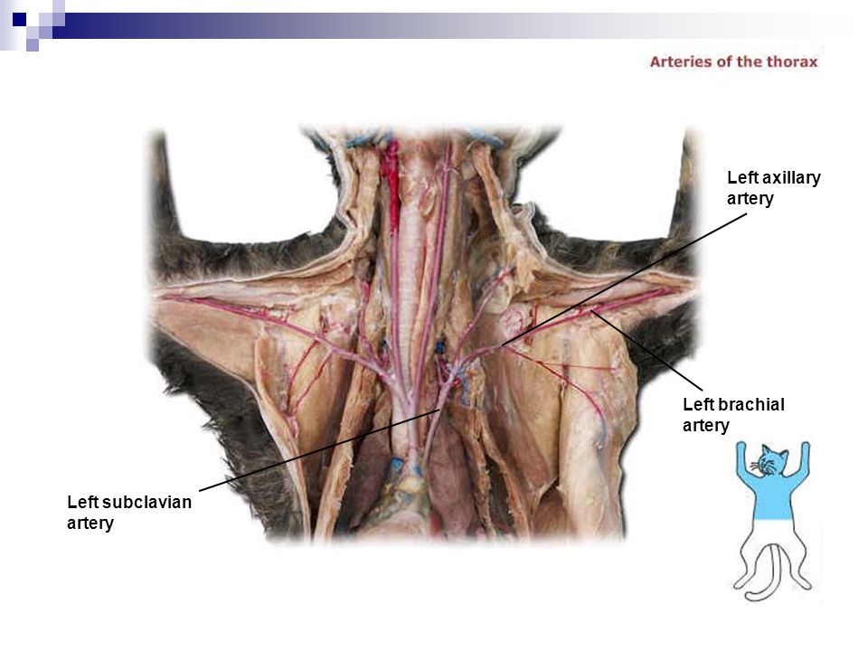 Left axillary artery Left brachial artery Left subclavian artery