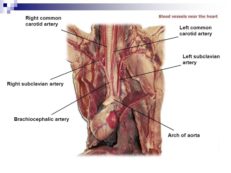 Right common carotid artery. Left common. carotid artery. Left subclavian. artery. Right subclavian artery.