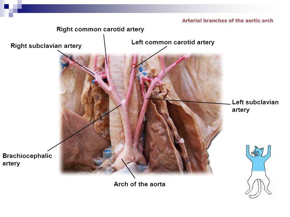 Right common carotid artery
