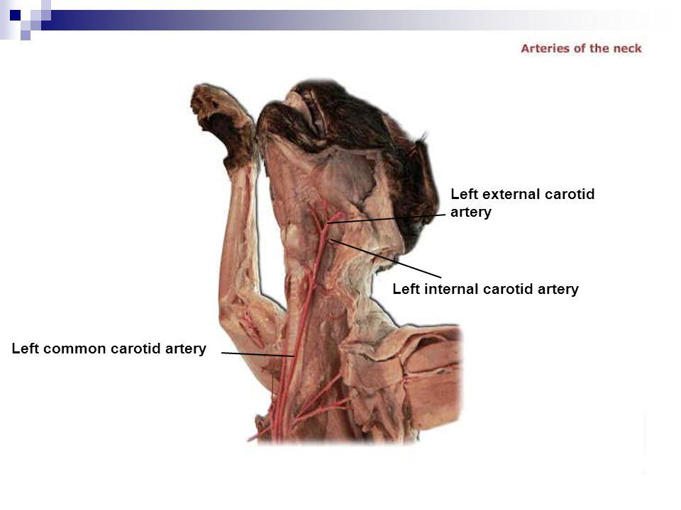 Left external carotid artery Left internal carotid artery Left common carotid artery