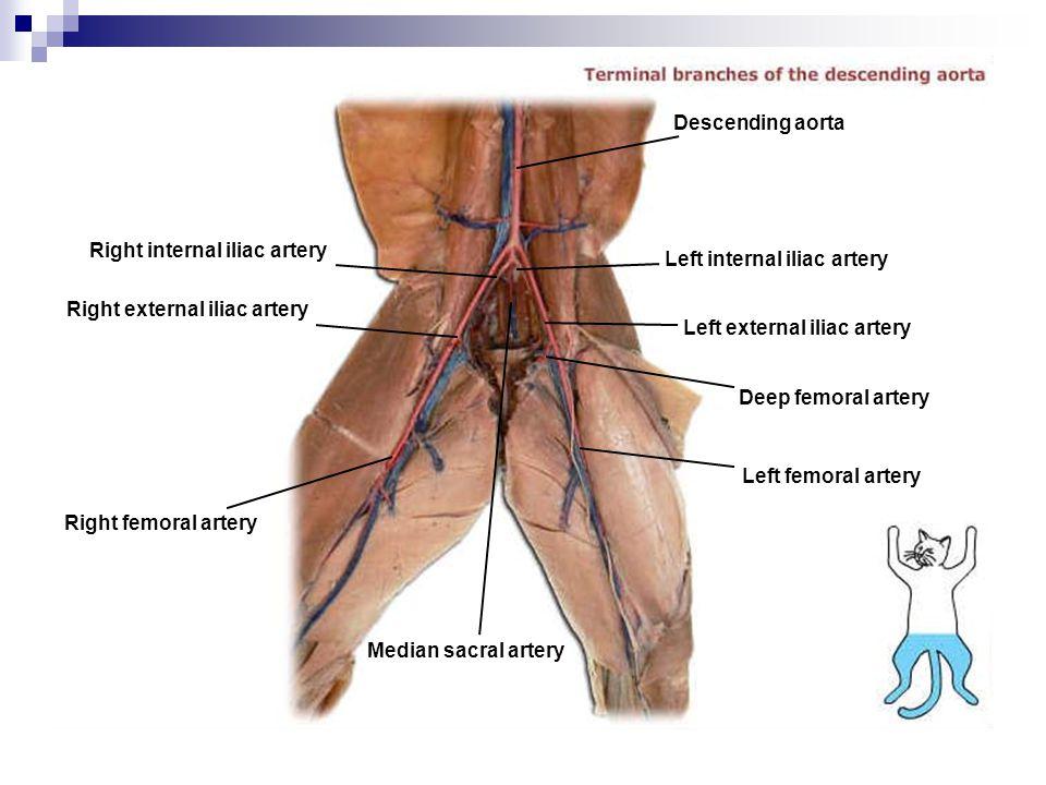 Descending aorta Right internal iliac artery. Left internal iliac artery. Right external iliac artery.
