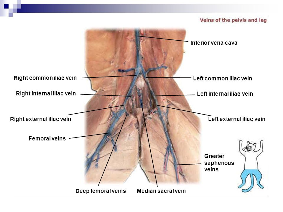 Inferior vena cava Right common iliac vein. Left common iliac vein. Right internal iliac vein. Left internal iliac vein.