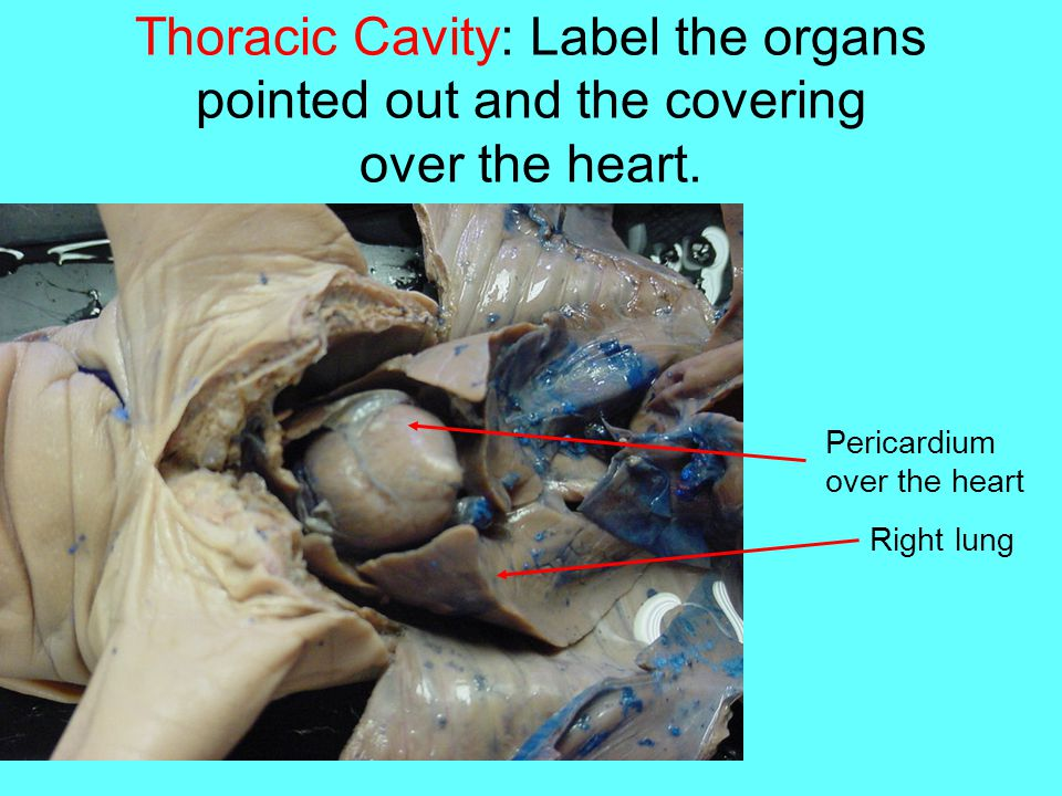 Thoracic Cavity: Label the organs pointed out and the covering over the heart.