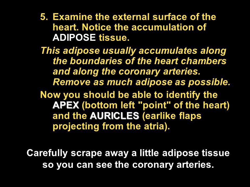 Examine the external surface of the heart