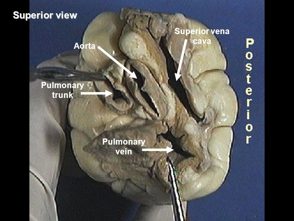Superior view Superior vena cava Aorta Pulmonary trunk Pulmonary vein