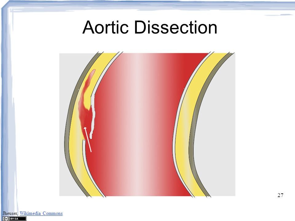 Aortic Dissection Jheuser, Wikimedia Commons