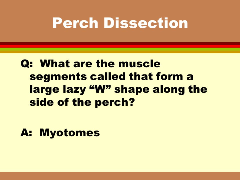 Perch Dissection Q: What are the muscle segments called that form a large lazy W shape along the side of the perch
