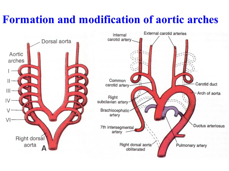 Formation and modification of aortic arches
